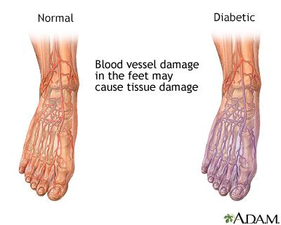Alasan mengapa perlu obat luka diabetes yang tepat
